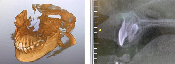南林間アルファ歯科・矯正歯科 CT