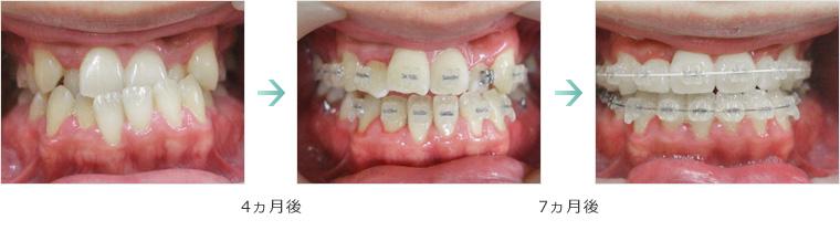 矯正歯科症例